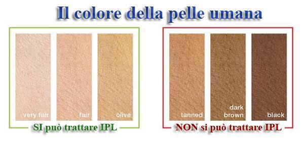 Mappa colori pelle IPL